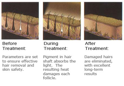 laser-hair-removal-before-after-results